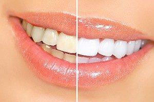 bělení zubů Ústí nad Labem