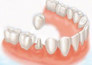 zubní korunka a můstek