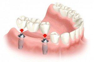 zubní implantát druhy
