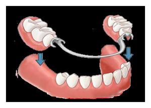 zubní teleskopické protézy