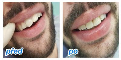 zubaři přijímají nové pacienty