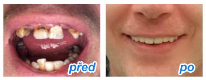 zubaři, kteří přijímají nové pacienty