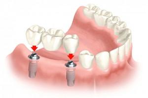 Zubní implantáy
