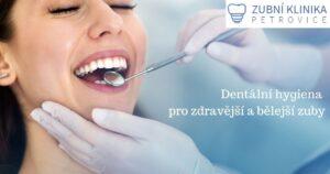 dentální hygiena Ústí nad Labem