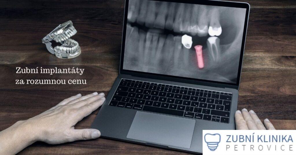 zubní implantáty ceny Ústí nad Labem